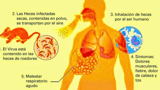 fiebre de lassa